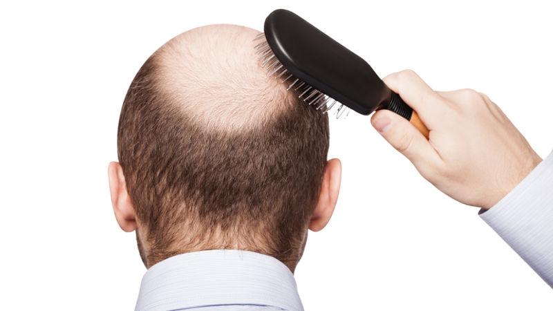 Stem Cell FUE Hair