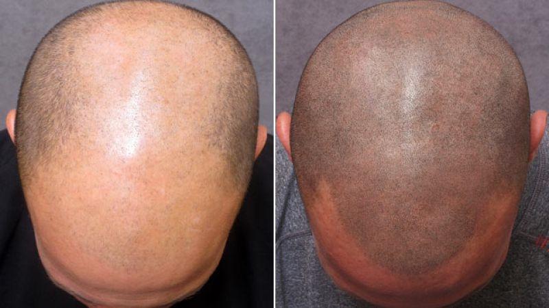 Nano Graft Hair Transplant